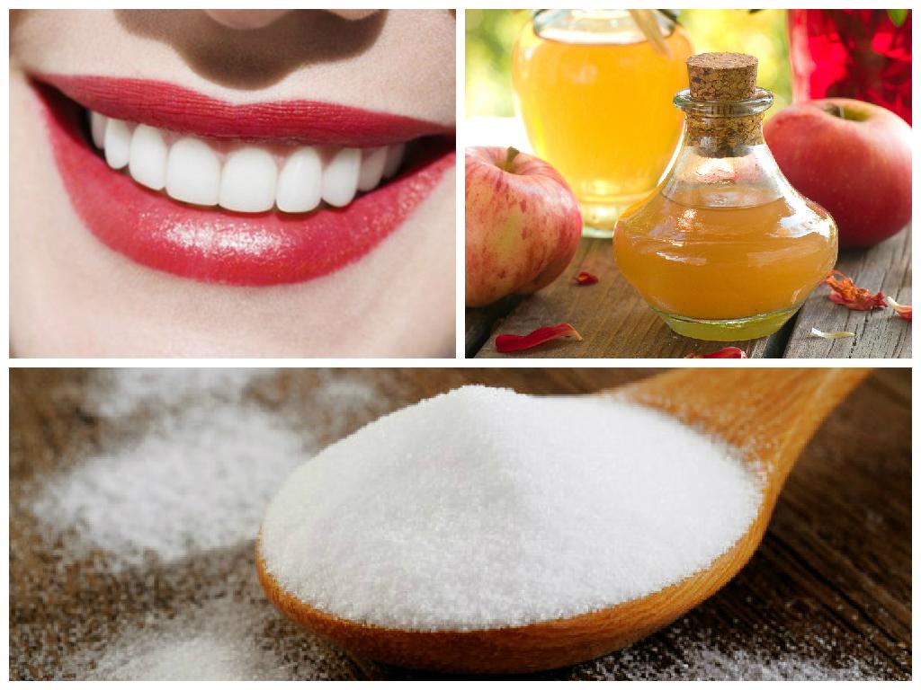 elma sirkesi ile diş beyazlatma
