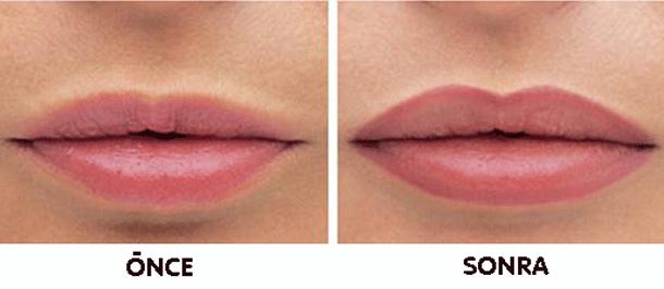 dudakları-büyük-göstermek