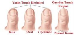tirnak2