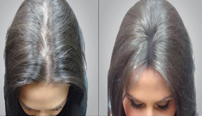 Photo of Kadınlarda Saç Ekimi Yapılır mı? Kadınlar Saç Ekimi Nasıl Yapılır?