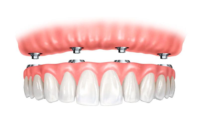 Photo of Diş Eksikliği Tedavisi