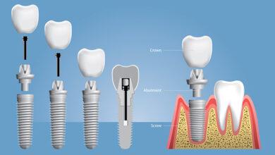 Photo of Diş İmplant Tedavisi – İmplant Fiyatları