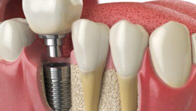 Photo of İmplant Diş Yaptırmanın Avantajları Nedir?