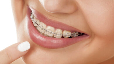 Photo of What is Orthodontics ?